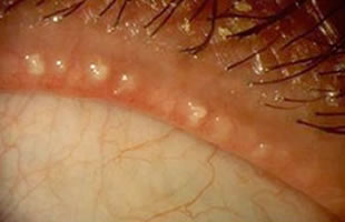 Cysts can develop